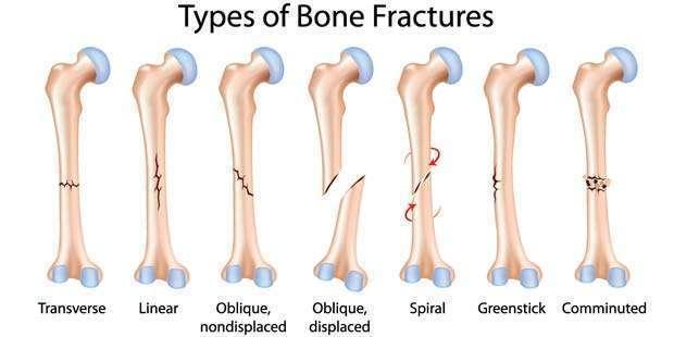 BoneFractures