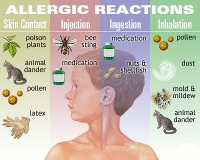 Four-Common-Allergic-Reactions