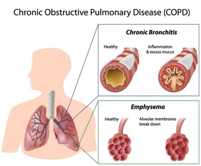 COPD-diagram_160331_100539