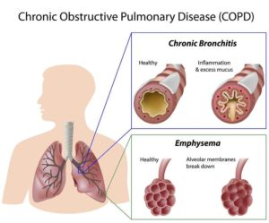 COPD, What Is COPD